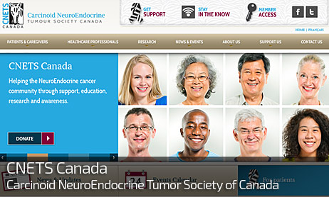 Web Design for CNETS CANADA